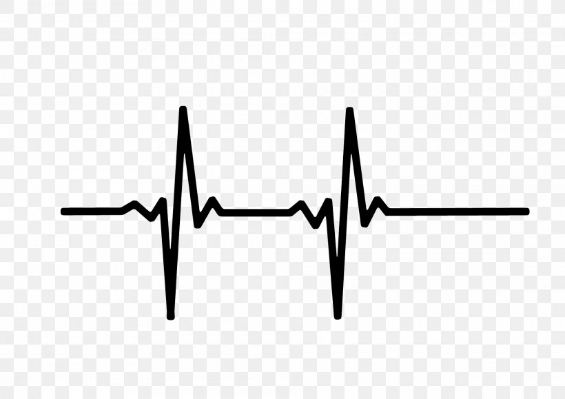Heart Rate Monitor Pulse Electrocardiography, PNG, 1920x1357px, Heart Rate, Black, Black And White, Bradycardia, Cardiac Monitoring Download Free