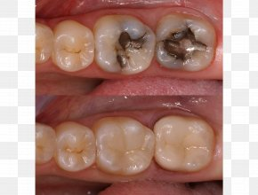 Cosmetic Treatment - Tooth Dental Restoration Inlays And Onlays Crown Dental Composite PNG