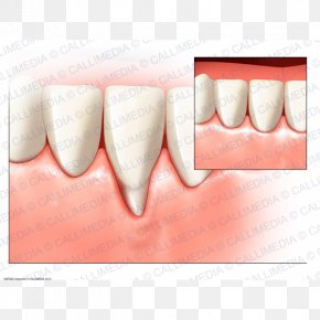 Health - Tooth Gums Surgery Periodontal Disease Gingival Recession PNG
