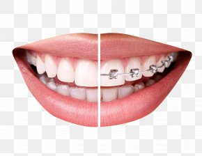Teeth With Braces - Dental Braces Clear Aligners Orthodontics Tooth Dentistry PNG