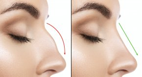 Nose - Nose Rhinoplasty Plastic Surgery Surgeon PNG
