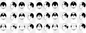 Hair - Pattern Hair Loss Hair Transplantation Management Of Hair Loss Hair Follicle PNG
