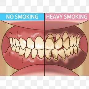 Tongue - Tooth Dentist Periodontal Disease Tobacco Smoking 歯科 PNG