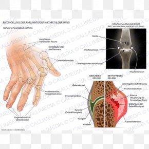 Muscular Development - Rheumatoid Arthritis Disease Therapy Chronic Childhood Arthritis PNG