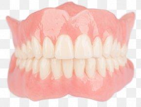 Bridge - Tooth Dentures Dentistry Dental Laboratory PNG