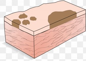 Patchwork - Macule Patch Cutaneous Condition Dermatology PNG