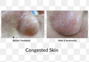 Algae - Chin Jaw Finger Disease Skin PNG