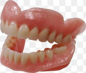 Teeth Image - Human Tooth Dentures PNG