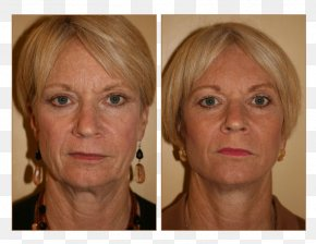 Nose - Chin Cheek Forehead Lip Hair Coloring PNG
