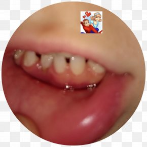 Baby Teeth - Chin Cheek Mouth Jaw Lip PNG