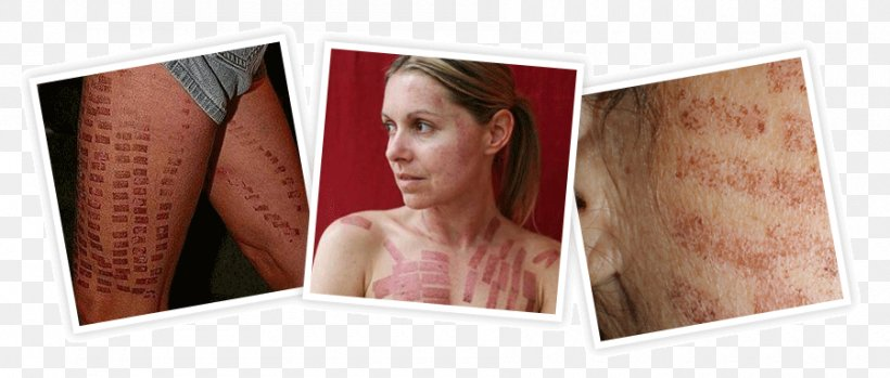 Laser Hair Removal Video Tattoo Removal Png 900x384px Hair