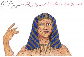 Boils Cliparts - Plagues Of Egypt Bible Book Of Exodus Boil Book Of Leviticus PNG