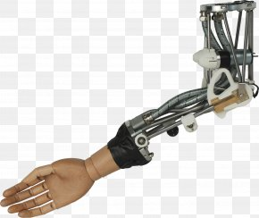 Arm Prosthetic Hand - Robotic Arm Prosthesis Bionics PNG