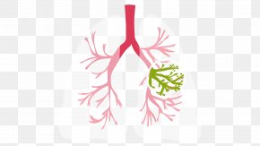 Lungs - Cystic Fibrosis Lung Medical Diagnosis Symptom Solitary Pulmonary Nodule PNG