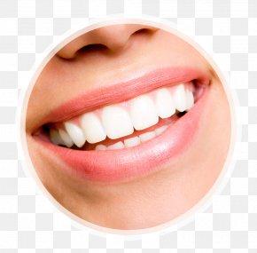 Coffee Stains Teeth - Veneer Tooth Whitening Human Tooth Dentistry PNG